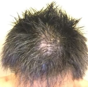 自分の頭が薄毛状態
