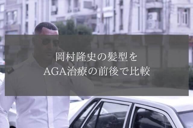 岡村隆史の髪型をAGA治療の前後で比較