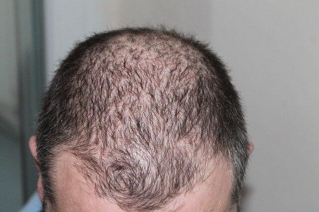 抜け毛が増える理由は5つ