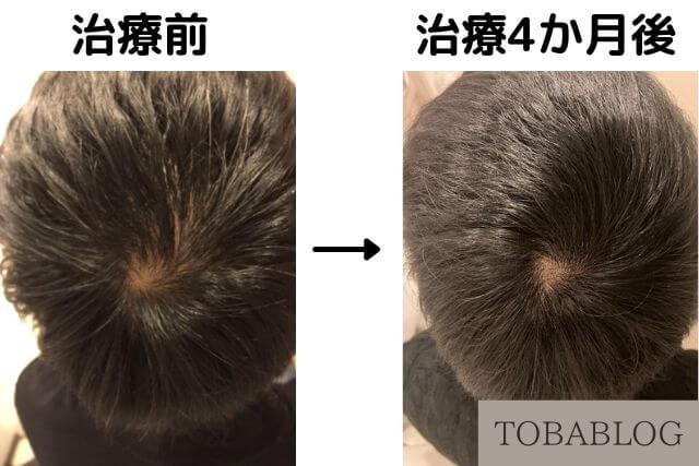 AGA治療によるつむじの変化(TOBABLOG)
