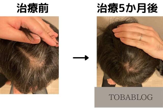 AGA治療5カ月目の変化_TOBABLOG