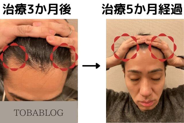 TOBABLOG_AGA治療5カ月経過