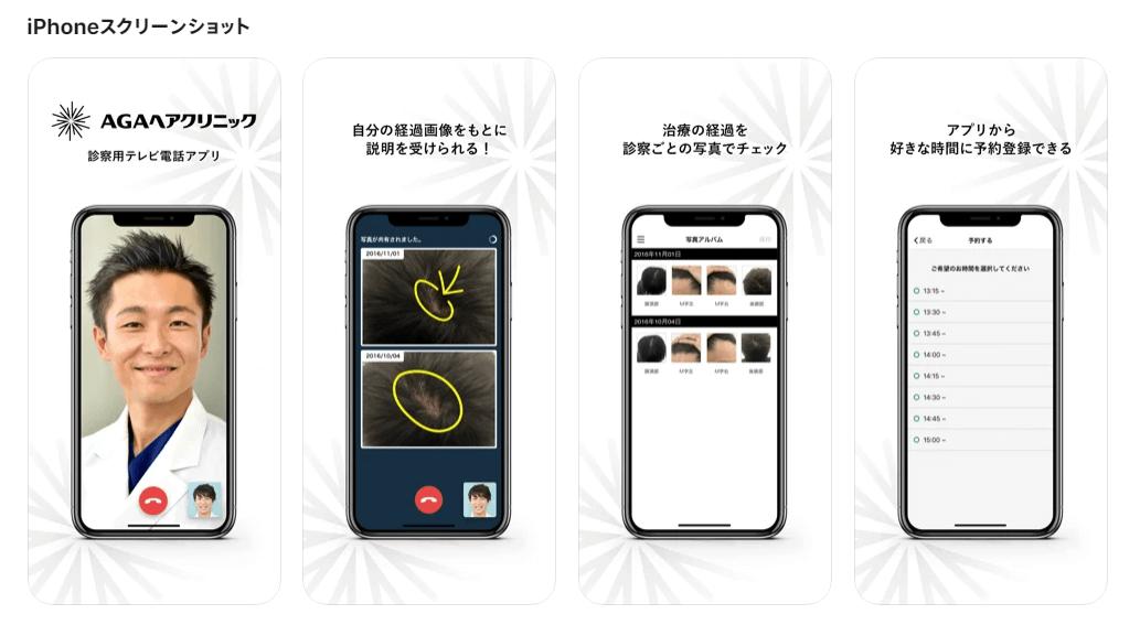 AGAヘアクリニック専用アプリ